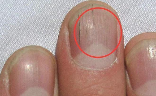 Nếu gan sinh bệnh hoặc nhiễm độc, móng tay sẽ có 3 thay đổi bất thường dễ nhận biết