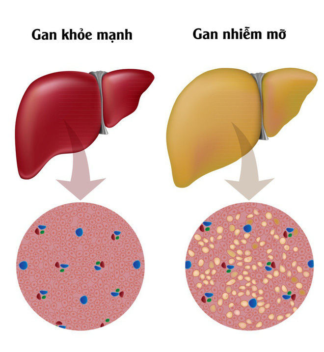 8 dấu hiệu chứng tỏ cơ thể đang bị thiếu protein và cần bổ sung ngay tức thì - Ảnh 5.
