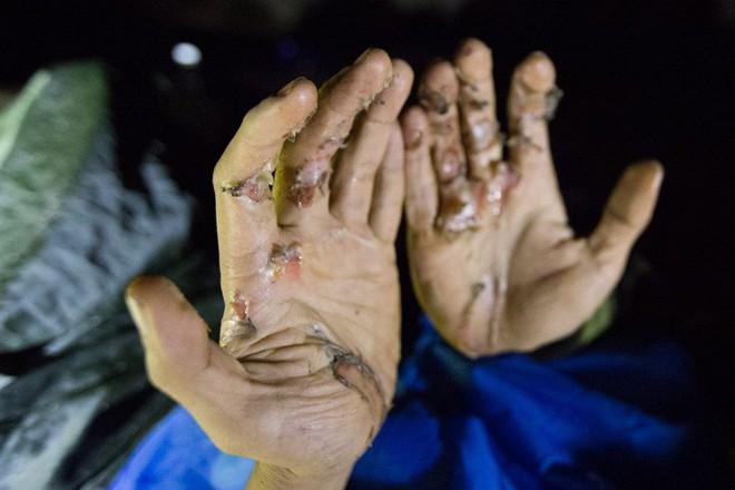 Hành trình khám phá hang Cống Nước sâu nhất VN: Tôi gãy xương đùi, vỡ đốt sống ngực... - Ảnh 9.