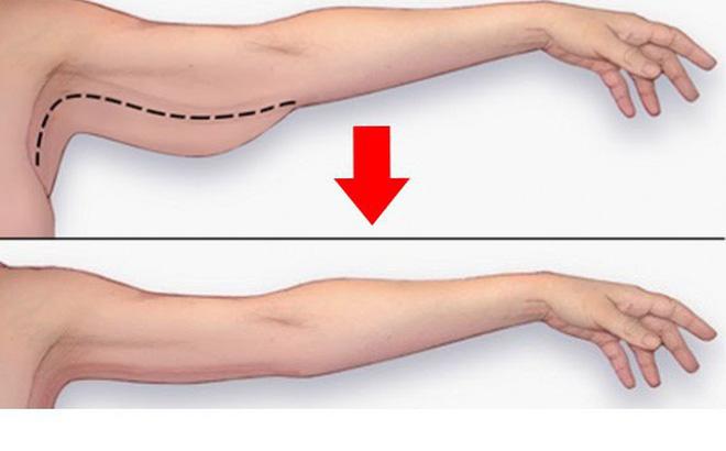 7 động tác làm thon gọn cánh tay chỉ trong 4 phút: Chị em tập ngay để tự tin suốt mùa hè
