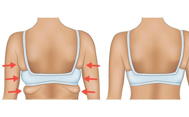 10 động tác giúp loại bỏ mỡ thừa vùng lưng và nách hiệu quả: Chị em nên tập để tự tin hơn