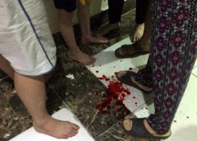 Gạch ốp cửa thang máy chung cư bất ngờ rơi trúng đầu hai bé trai 2