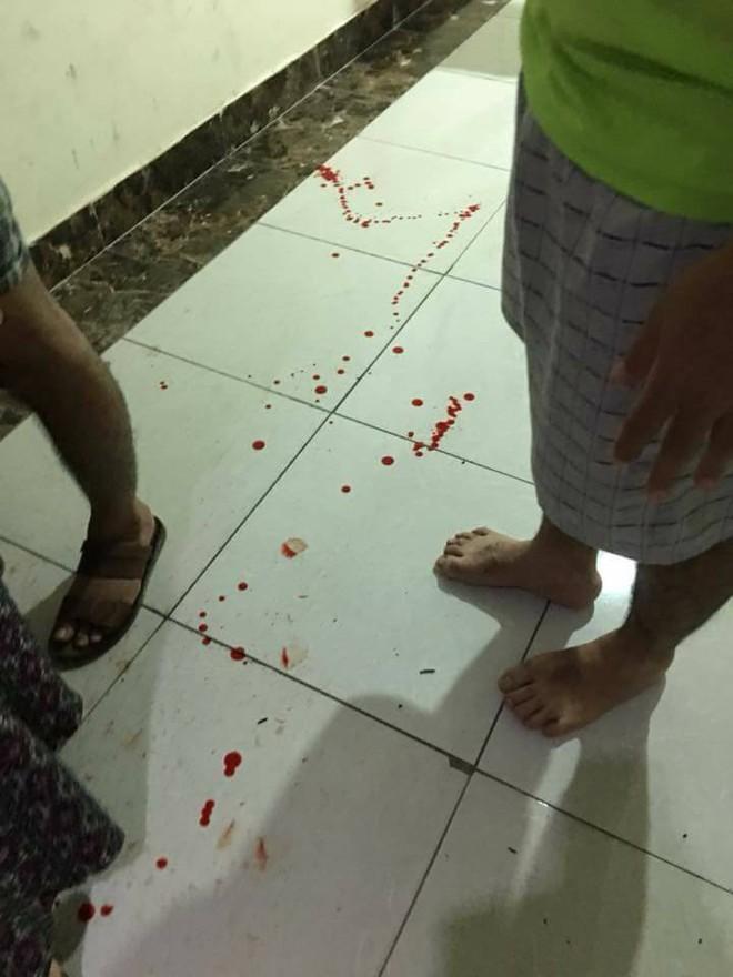 Gạch ốp cửa thang máy chung cư bất ngờ rơi trúng đầu hai bé trai 3