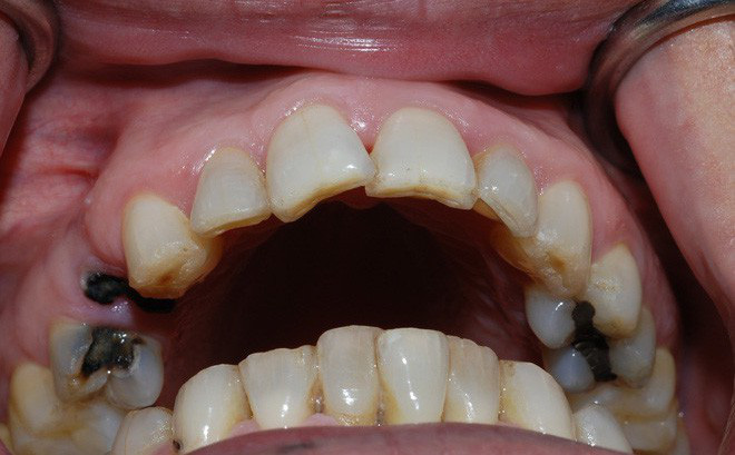 Image result for sâu răng