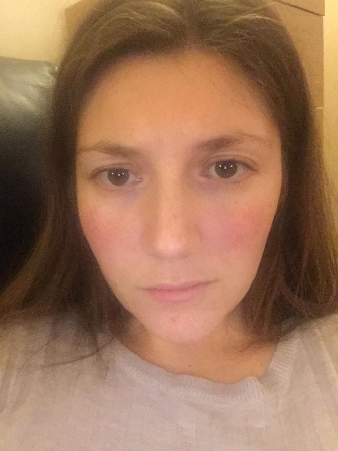 Cô gái mắc phải căn bệnh lupus quái ác do chấn động tinh thần: Bài học cho nhiều người - Ảnh 3.