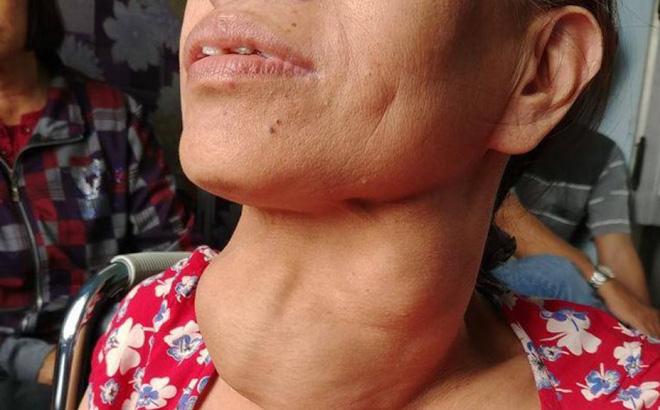 Dù ăn rất mặn nhưng người Việt vẫn thiếu i ốt tồi tệ nhất thế giới: Đâu là nguyên nhân?