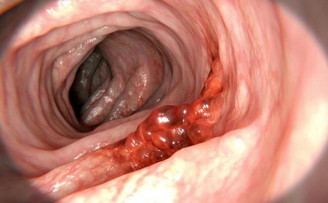Bác sĩ Tiêu hoá cảnh báo 5 dấu hiệu sớm ung thư đại trực tràng: Hãy biết để tự cứu mình 2