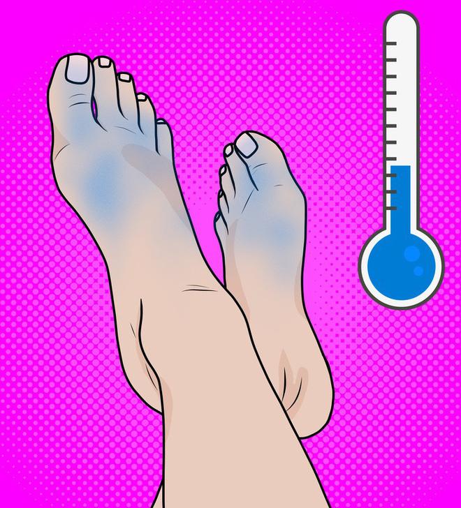 Nhìn ngay xuống bàn chân soi dấu hiệu bệnh tật cư trú trong người: Số 3 rất nguy hiểm! - Ảnh 4.