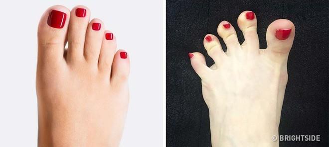 Nhìn ngay xuống bàn chân soi dấu hiệu bệnh tật cư trú trong người: Số 3 rất nguy hiểm! - Ảnh 10.