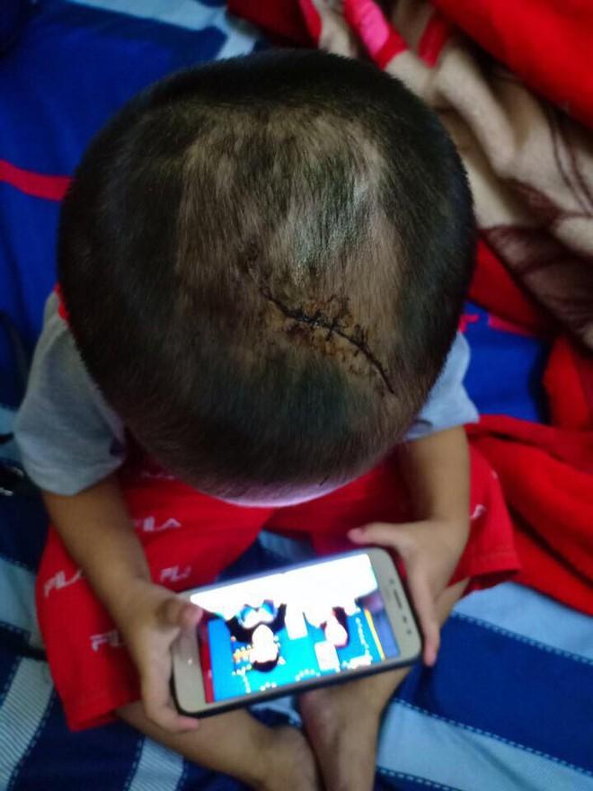 Bình Dương: Nghi vấn cháu bé 3 tuổi bị mẹ ruột và cha hờ bạo hành dã man - Ảnh 1.
