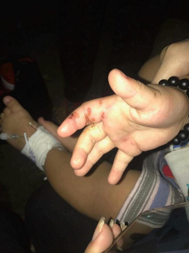 Bình Dương: Nghi vấn cháu bé 3 tuổi bị mẹ ruột và cha hờ bạo hành dã man - Ảnh 4.