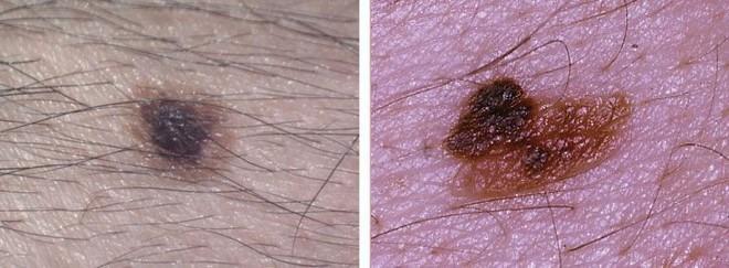Chuyên gia hướng dẫn cách kiểm tra nốt ruồi trên cơ thể có khả năng gây ung thư hay không - Ảnh 2.