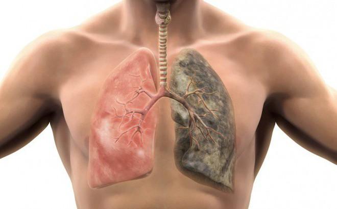Kết quả hình ảnh cho bệnh phổi
