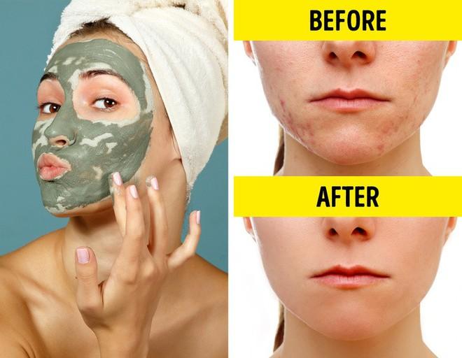 Cách trị ngứa rát, sưng đỏ, bỏng nhẹ và các vấn đề ngoài da bằng nguyên liệu tự nhiên - Ảnh 10.