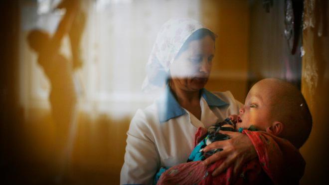 Trẻ em sinh ra bị mắc dị tật bẩm sinh. Nguồn: Gizmodo