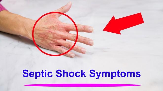 Căn bệnh này có thể giết chết một người chỉ sau vài giờ: Đừng làm ngơ trước dấu hiệu và nguyên nhân nhiễm bệnh - Ảnh 4.