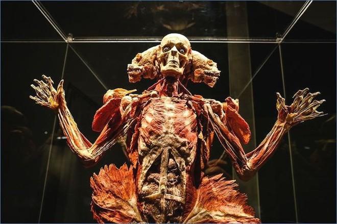 [ẢNH] Cận cảnh triển lãm xác người đầy ám ảnh được tổ chức ở TP.HCM sau khi Hà Nội không cấp phép - Ảnh 13.