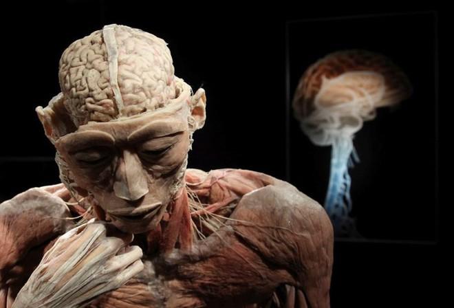 [ẢNH] Cận cảnh triển lãm xác người đầy ám ảnh được tổ chức ở TP.HCM sau khi Hà Nội không cấp phép - Ảnh 15.