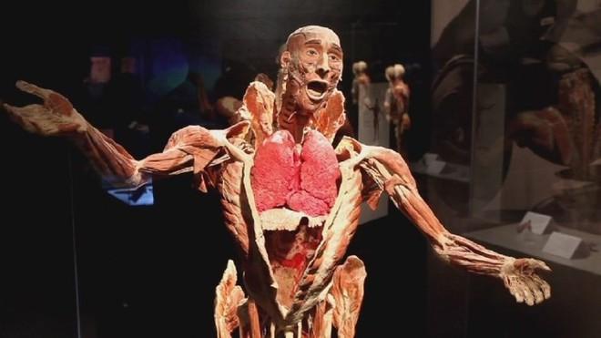 [ẢNH] Cận cảnh triển lãm xác người đầy ám ảnh được tổ chức ở TP.HCM sau khi Hà Nội không cấp phép - Ảnh 18.