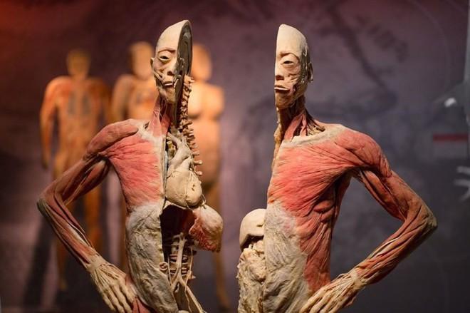 [ẢNH] Cận cảnh triển lãm xác người đầy ám ảnh được tổ chức ở TP.HCM sau khi Hà Nội không cấp phép - Ảnh 5.