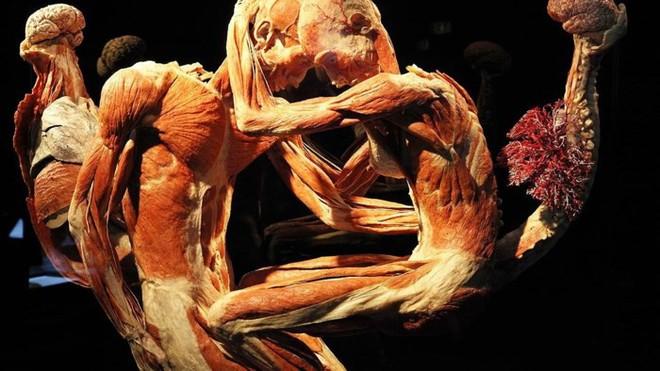 [ẢNH] Cận cảnh triển lãm xác người đầy ám ảnh được tổ chức ở TP.HCM sau khi Hà Nội không cấp phép - Ảnh 7.