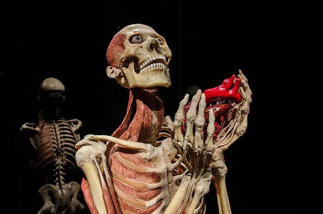 [ẢNH] Cận cảnh triển lãm xác người đầy ám ảnh được tổ chức ở TP.HCM sau khi Hà Nội không cấp phép - Ảnh 8.