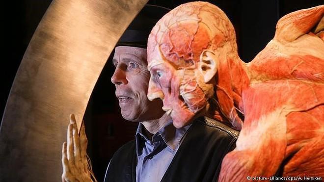 [ẢNH] Cận cảnh triển lãm xác người đầy ám ảnh được tổ chức ở TP.HCM sau khi Hà Nội không cấp phép - Ảnh 10.