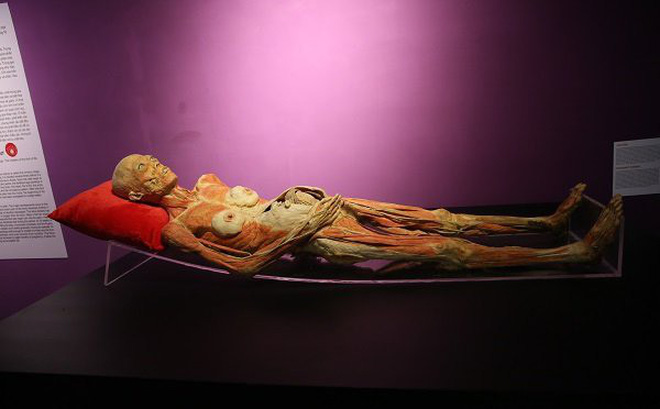 Yêu cầu báo cáo về triển lãm cơ thể người gây phản cảm