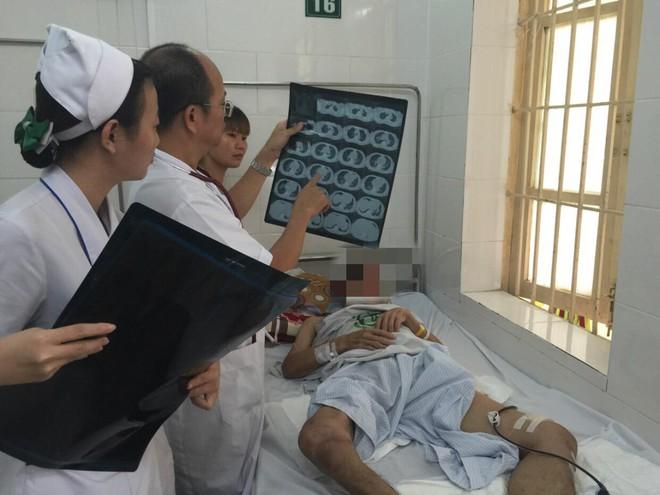 Bác nông dân ở Hoà Bình nguy kịch vì mắc bệnh truyền nhiễm nguy hiểm thông qua 1 vết xước - Ảnh 1.