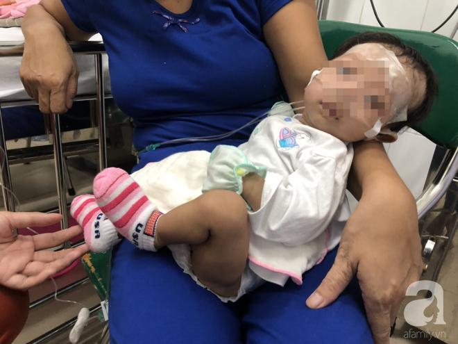 Chuẩn bị tinh thần mất con gái 2 tháng tuổi vì căn bệnh lần đầu tiên phát hiện tại VN, nhưng rồi cha mẹ vỡ òa vì hạnh phúc - Ảnh 1.