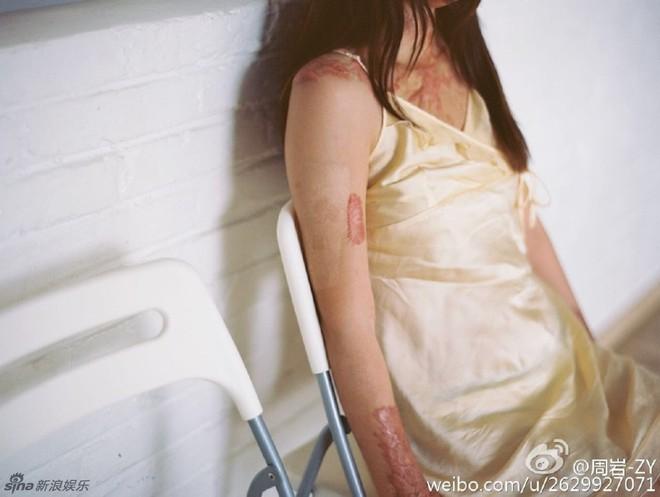 Cả gan từ chối tình cảm thiếu gia tài phiệt, cô gái bị thiêu sống tại chỗ và trải qua 7 năm đau đớn về thể xác lẫn tinh thần - Ảnh 9.
