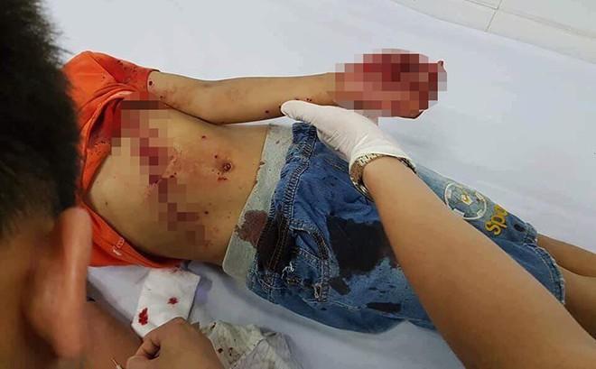 Đồ chơi chạy bằng pin phát nổ, bé trai 8 tuổi mất da, lộ xương cổ tay