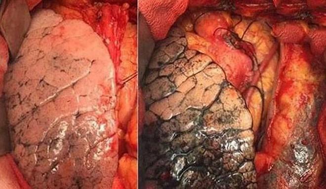 Dấu hiệu nhận biết ung thư phổi giai đoạn cuối - Ảnh 1.