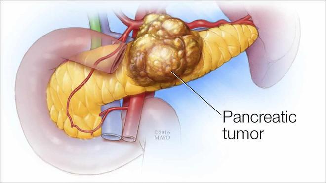 6 dấu hiệu của ung thư tuyến tụy: Căn bệnh cực nguy hiểm vì tỷ lệ sống sót chỉ còn 8,5% - Ảnh 1.