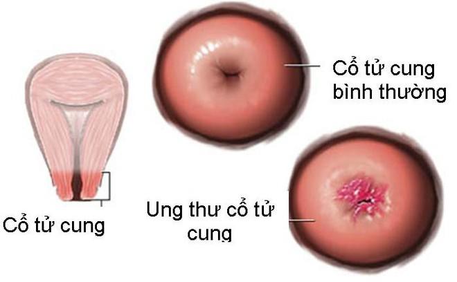 3 cách phát hiện ung thư cổ tử cung sớm nhất: Mọi phụ nữ cần biết đừng để quá muộn - Ảnh 2.