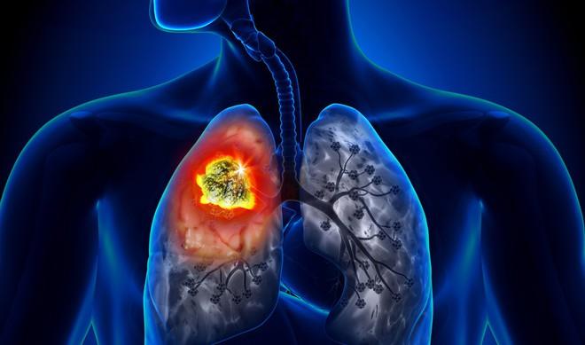 90% ca ung thư phổi là do thủ phạm này gây ra: Bỏ ngay là biện pháp phòng bệnh tốt nhất - Ảnh 1.