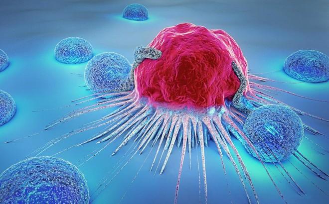 """5 thói quen """"nuôi lớn"""" tế bào ung thư: Nguy cơ mắc bệnh cao nếu bạn không chịu thay đổi"""