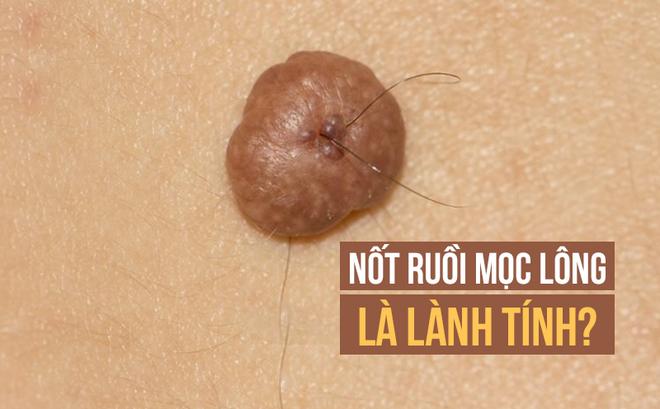 Lông mọc ở nốt ruồi không gây ung thư và có thể cắt bỏ được: Sự thật có phải vậy không?