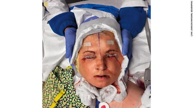 Ca phẫu thuật lịch sử dài 31 giờ trả lại gương mặt xinh đẹp cho cô gái 21 tuổi - Ảnh 3.