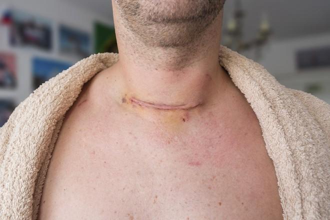 Thấy 5 dấu hiệu này, bạn nên đi khám vì ung thư tuyến giáp đang lớn dần trong cơ thể - Ảnh 3.