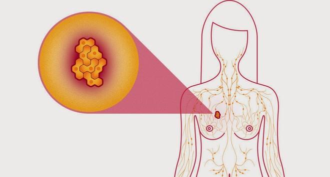 7 triệu chứng ung thư sớm không gây đau: Chỉ cần có 1 triệu chứng là bạn phải đi khám ngay - Ảnh 3.