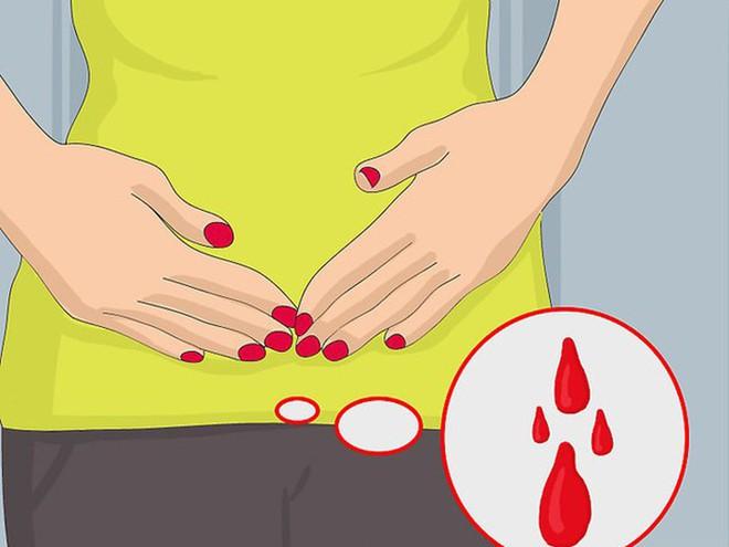7 triệu chứng ung thư sớm không gây đau: Chỉ cần có 1 triệu chứng là bạn phải đi khám ngay - Ảnh 4.
