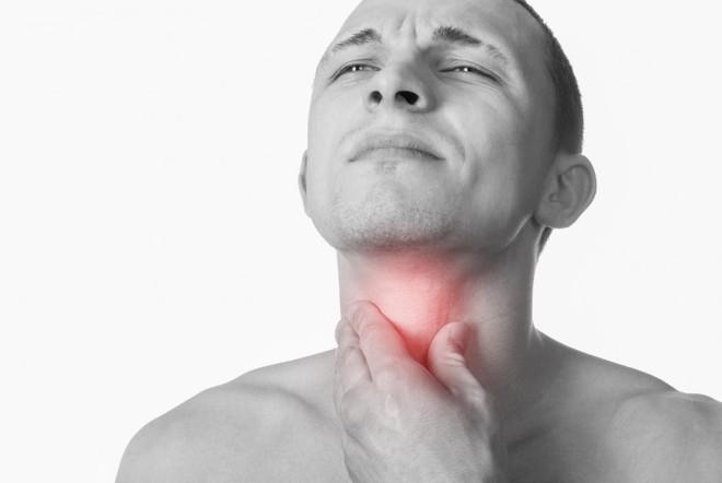 Có dấu hiệu chết người này không khỏi sau 2 - 3 tuần, hãy cẩn trọng với ung thư cổ họng - Ảnh 3.