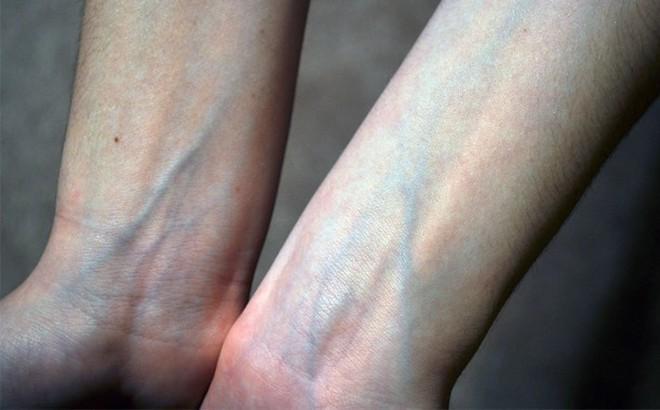 Nổi gân xanh trên cơ thể, bệnh gì?