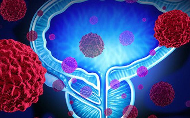 Những dấu hiệu nhận biết bạn đã bị ung thư tuyến tiền liệt