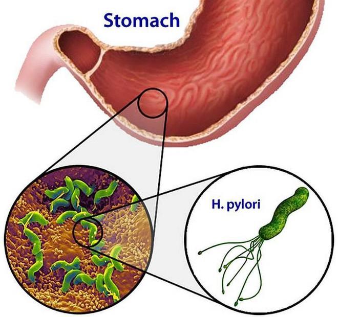 Chọn kháng sinh diệt vi khuẩn H.Pylori hiệu quả - Ảnh 1.