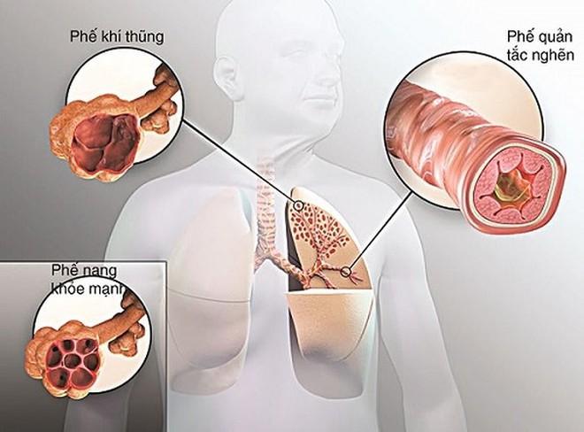 Máu không tinh khiết là nguyên nhân chính gây ra những bệnh này - Ảnh 1.