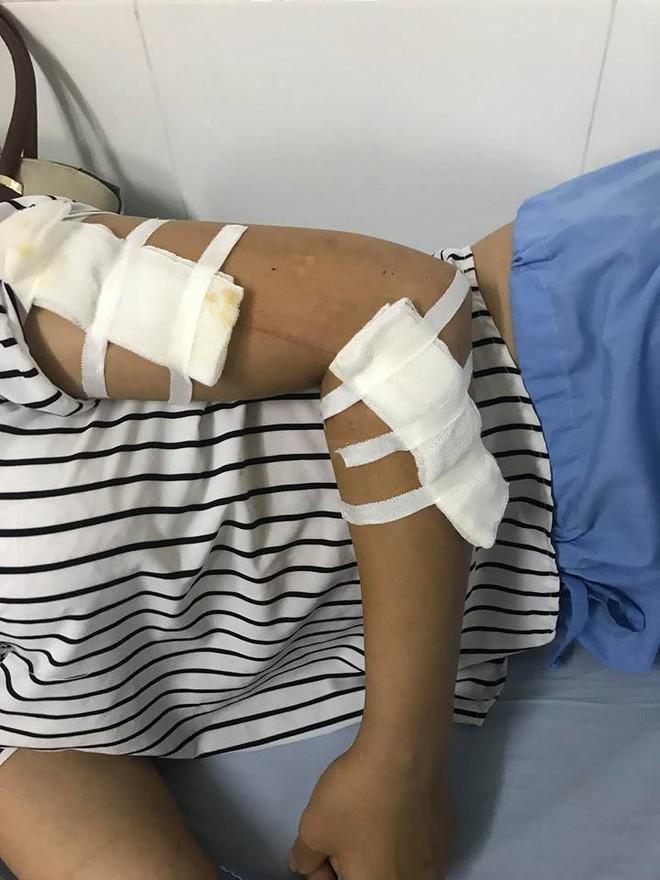 Vụ án 7 người bị chém ở Thái Nguyên: Trả thù vặt vì bị nói vỡ nợ, làm ăn mạt kiếp? - Ảnh 5.