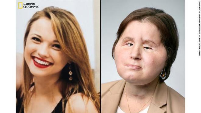 Ca phẫu thuật lịch sử dài 31 giờ trả lại gương mặt xinh đẹp cho cô gái 21 tuổi - Ảnh 2.