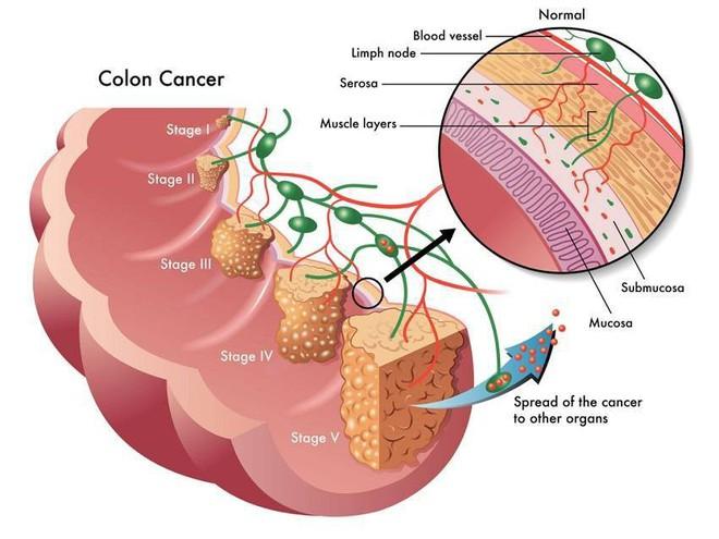 95% ca ung thư đại tràng liên quan đến nguyên nhân này, làm sao để phòng bệnh đúng cách? - Ảnh 1.